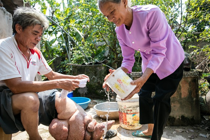 VN eliminates lymphatic filariasis