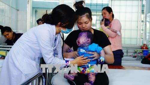 Chickenpox cases on the rise in south
