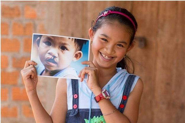 Hotels support Operation Smile Vietnam