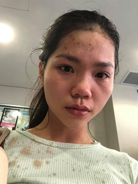 Vietnamese woman claims she was attacked in Australia for wearing a mask