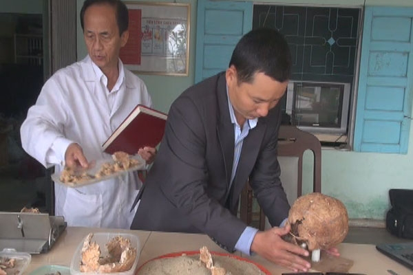 Archaeologists successfully restore ancient human skull